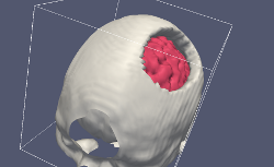 Skull with an opening